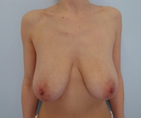 Zmenšení - redukce prsou