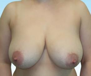 Zmenseni - redukce prsou