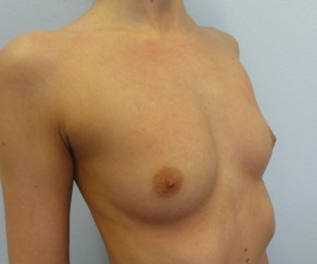 Breast Augmentation Mentor CPG 295