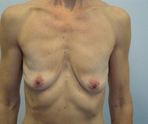 Augmentace a modelace prsou