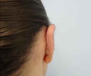 Plastika ušních boltců