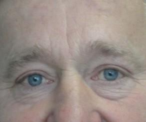 Úprava očních víček