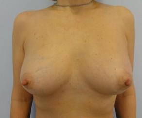 Zvětšení prsou vlastním tukem